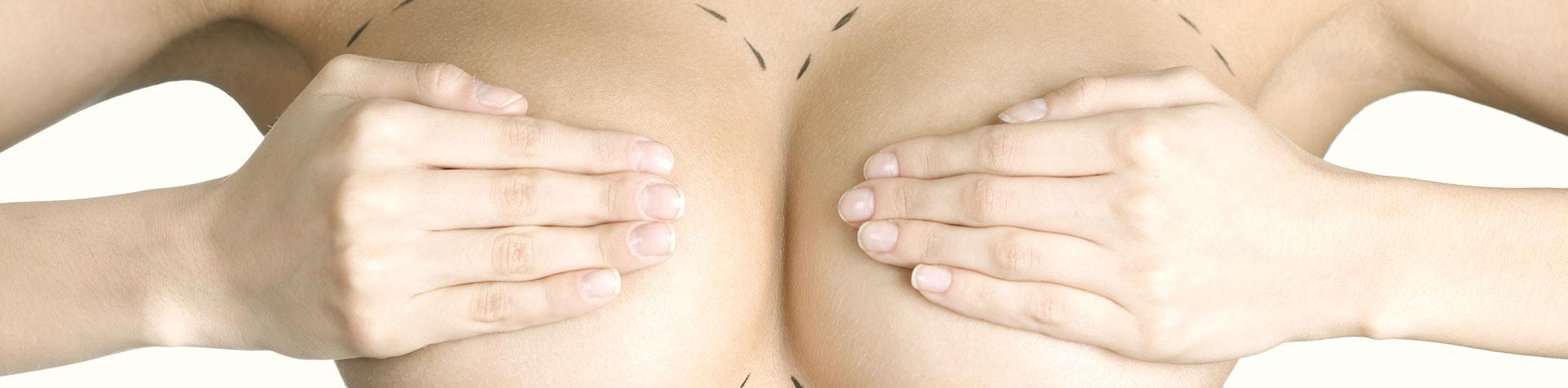 operace-prsa.jpg
