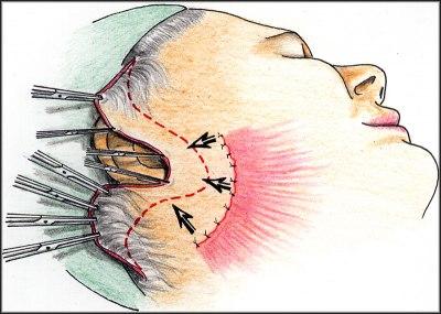 SMAS lifting a odstranění kožního nadby