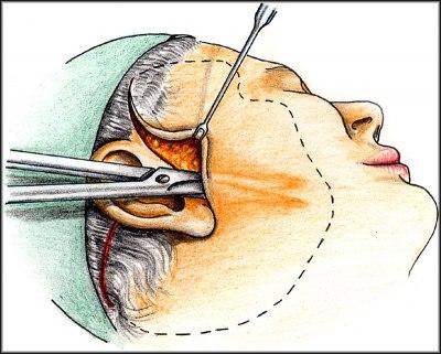 Preparace a uvolnění kůže obličeje