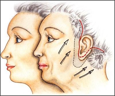 Rozsah kožního nadbytku a průběh řezu